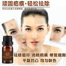Эфирное масло от рубцов и шрамов